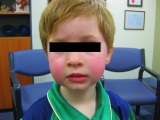 Clinical Quiz: The Rosy Cheeked Child